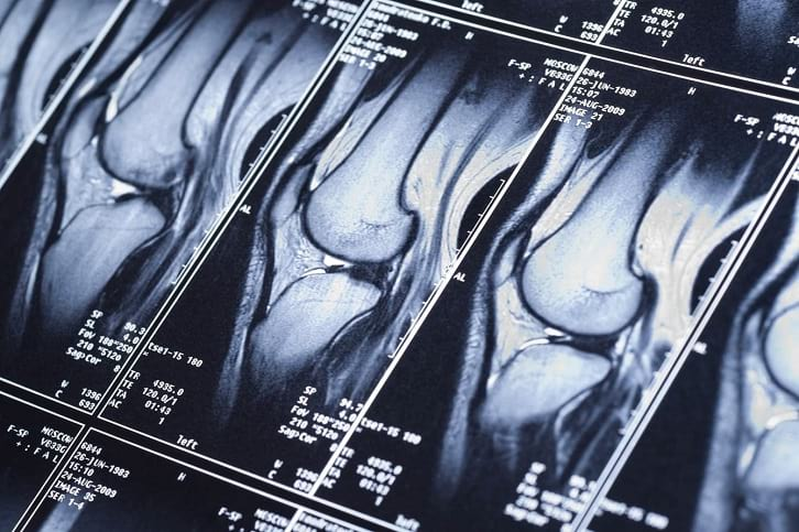 פציעות ברכיים בסקי: הרצועה המדיאלית